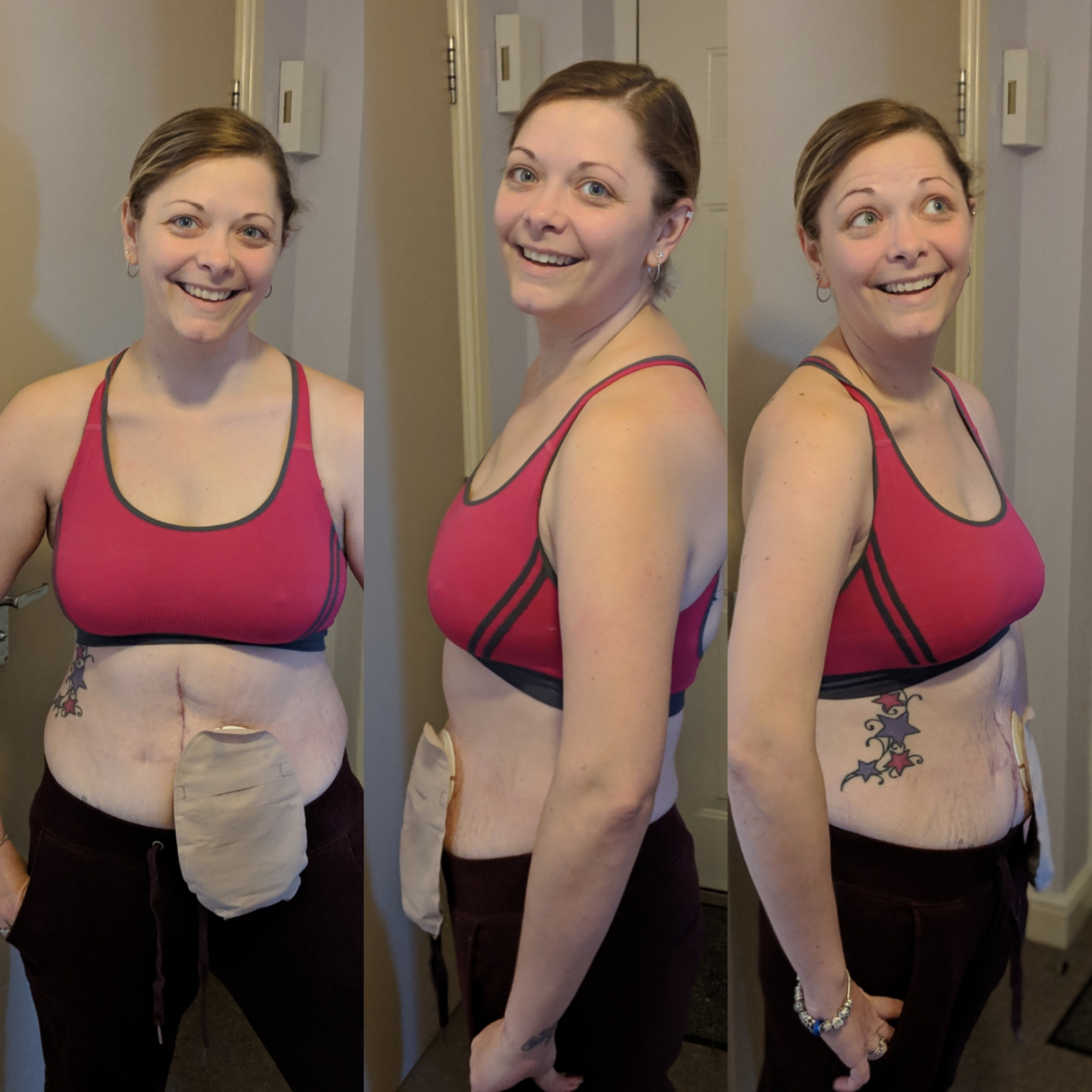Can Weight Loss Weight Gain Affect Our Stoma Site Pelican Healthcare
